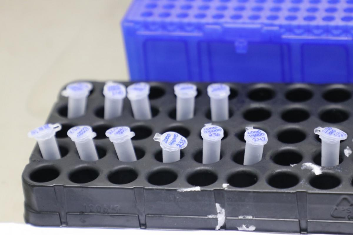 Amazonas passa a realizar o diagnóstico de Covid-19