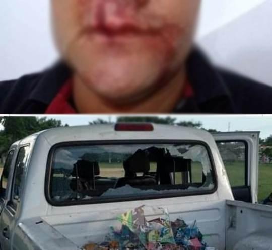 Guarda municipal tem rosto atingido por pedrada em via pública