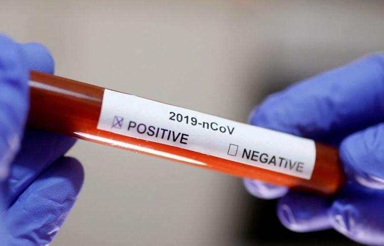 Casos confirmados de coronavírus em Parintins chegam a 919