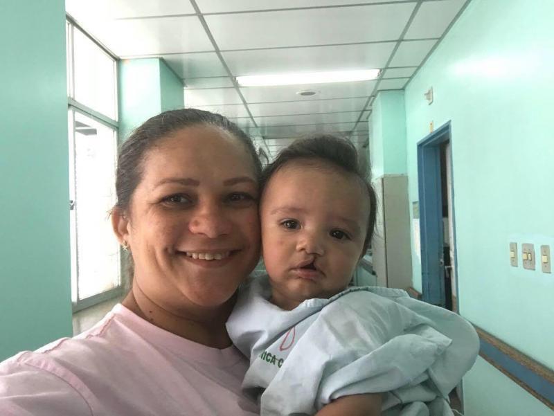 Hospital Dr Fajardo inicia triagem para cirurgias em crianças com lábio leporino