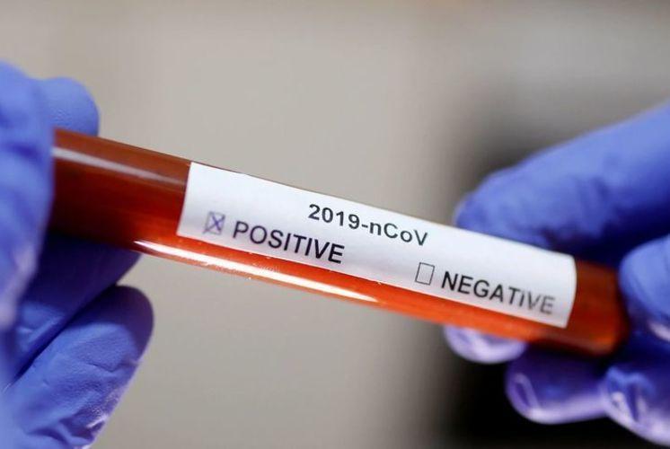 Amazonas confirma o primeiro caso de reinfecção pelo novo coronavírus