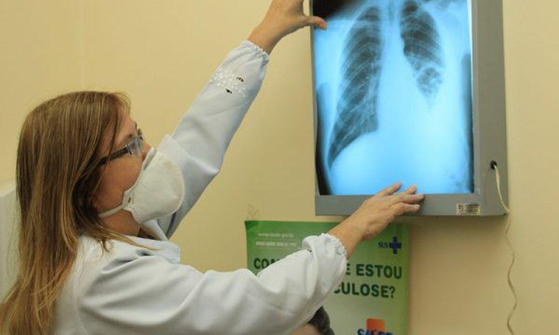 Pesquisadores do Brics buscam interconexões entre tuberculose e Covid