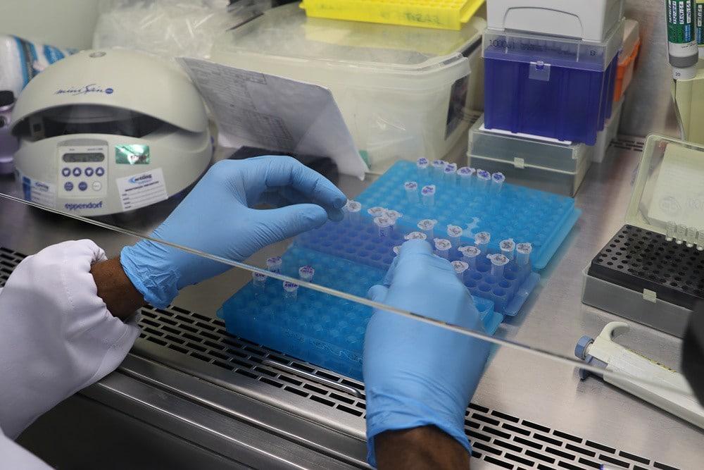 Em 24 horas, Amazonas registra 45 novos casos de Covid-19